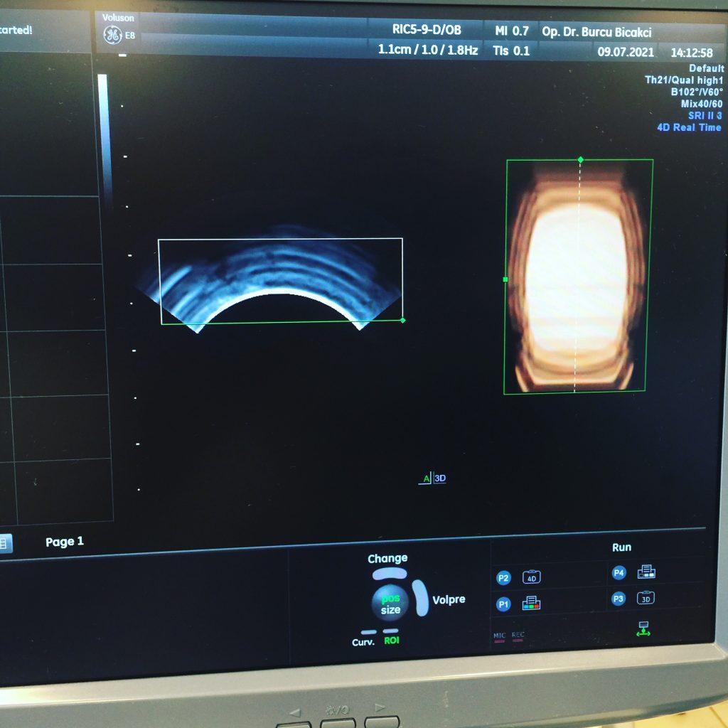 تعمیر پروب سونوگرافی