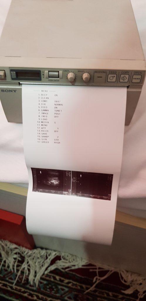 پرینتر دیژیتال سونی ساخت ژاپن upd897
